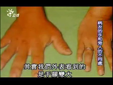 肢端肥大症 罕见疾病 大人物 纪录片
